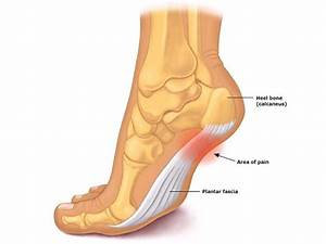 Will Lakers Pau Gasol Need Foot Surgery