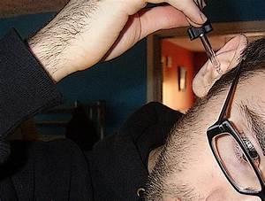Папиллома ушной раковины лечение