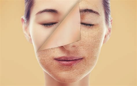 skin pale complexion adult acne health medicaldaily