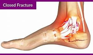Calcaneus Fracture Or Broken Heel