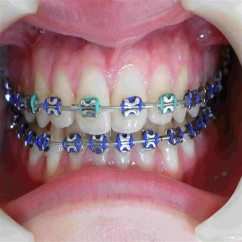 braces colors that make teeth look whiter the 25 best braces color wheel ideas on