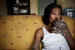 "Indonesian ""Tree Man"" Continues Treatment For Human ..."