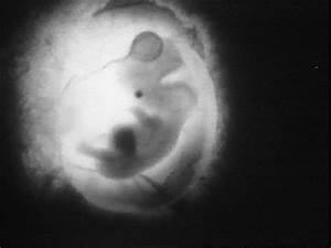 Real Sperm And Egg Fertilization Video | www.imgkid.com ...