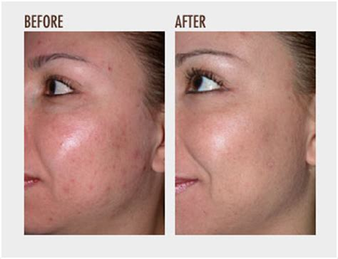 Microdermabrasion Before And After  Microdermabrasion At