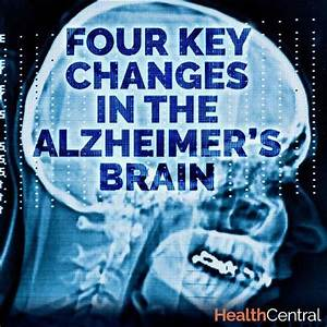 Pin By Have A Healthy Lifestyle On Keep Your Memory