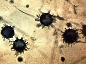 Histoplasmosis - Symptoms, Treatment, Pictures, Causes