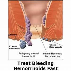 The gallery for --> Bleeding External Hemorrhoids