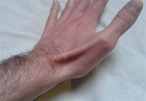 joint pain in fingers remedies