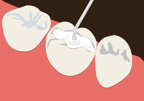 most durable dental fillings that are beautiful and biocompatible by