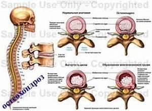 Остеохондроз шейно грудного отдела лечение уколы