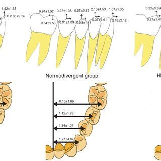 Tooth Movement Diagram by Tooth Movement Mm After Dental Decompensation According
