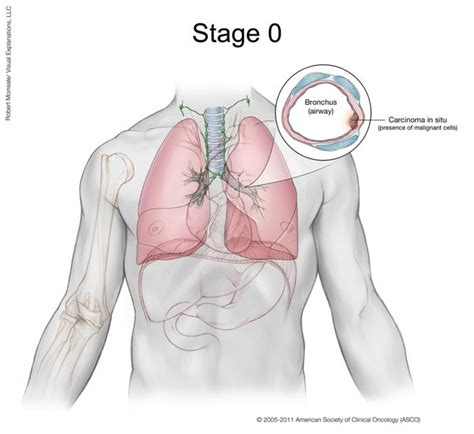 Lung Cancer  Small Cell Stages  Cancernet. Time Card Calculator Download Template. Public Relations Pitch Example Template. Meeting Agenda Templates Free Template. Request To Increase Credit Limit Letter Template. The Office Performance Review Template. Sample Cover Letter Sales Executive Template. Job Resume Sample Pdf Template. Sample Of Appeal Letter To Retake Exam