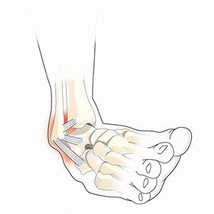 Ankle Ligament Injury - Ankle Injury - Injuries