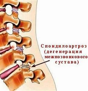 Лошадиная гель при болях в коленном суставе
