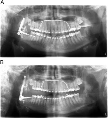 Data Modification Anomalies Are Caused By by Jaw Surgery For Correction Of Dentofacial Anomalies Caused