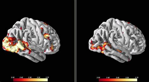 Brain Scans Help Predict Whether Patients Will Respond to