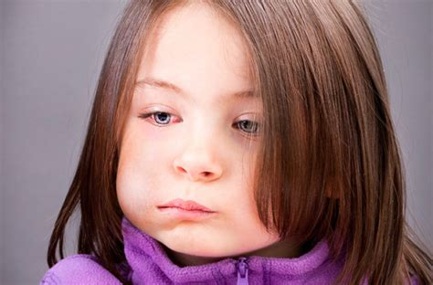 Why Are Mumps Outbreaks on the Rise? – Health Essentials ...