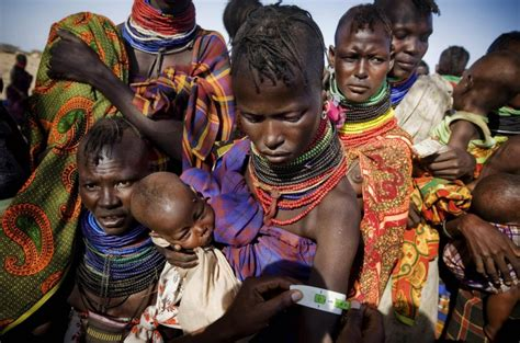 Millions Of Malnourished Children In Horn Of Africa Are At