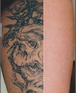 laser tattoo removal hurt