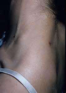 symptoms of cat scratch fever cat scratch fever causes symptoms treatment cat scratch