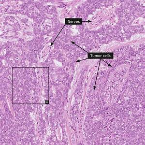 Dictionary - Pathology  Head And Neck Cancer