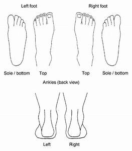 The Blank Foot Pain Manikin  Garrow Ap  Silman Aj