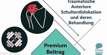 Anteriore Traumatische Deren Behandlung Subluxation Physiomeetsscience