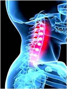 Остеохондроз и повышенное давление и их лечение