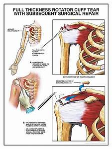 43 Best Images About Rotator Cuff Exercises On Pinterest