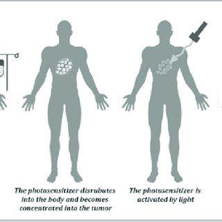 Pdf Photodynamic Therapy Non Invasive Cancer