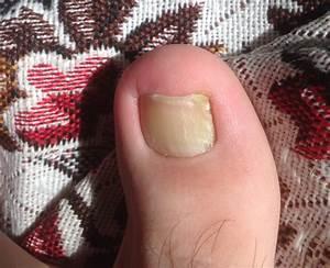 Грибок ногтей на руках лечение в домашних условиях йодом