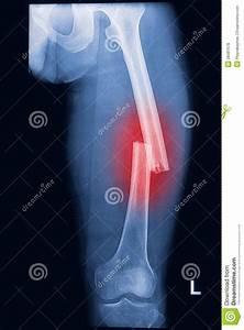 Broken Human Thigh X-rays Image Royalty Free Stock Photos ...