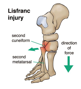Tara robbins, md ucsd sports medicine fellow. Lisfranc Injuries | An Uncommon Midfoot Injury