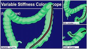 Colonscopy  Video 3d Splenic Flexure Intubation
