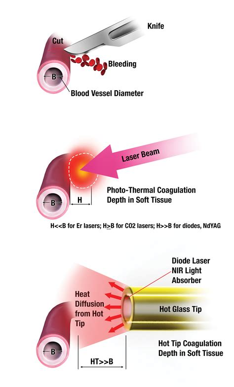 heat laser therapy