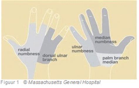 Tintelende handen en voeten