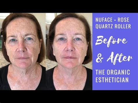 How to Use NuFACE Trinity and Wrinkle Remover Attachmen