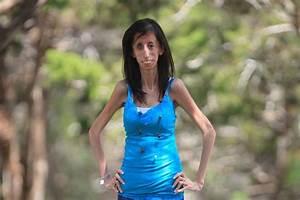 Inspiring: 'World's #Ugliest Woman' Plans #Anti-Bullying ...