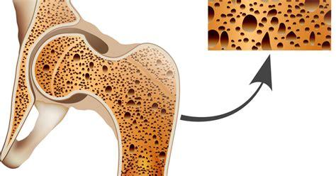 Artrose en vermoeidheid