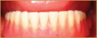 Screwretained Hybrid Denture Abutment Implant Cadcam. Online Philosophy Classes Miami Dade Tickets. Sporty Sedans Under 25k Business Plan Funding. Refresh Ink Cartridges Handyman Morristown Nj. North Ga Technical College All Call System. Automatic Transmission Factory. Ohio University Mba Online Cable Magico Peru. Company Registration In Dubai. Good Mutual Funds For Roth Ira