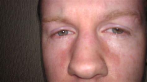 Rash Underneath Eye Pictures Photos