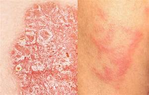 Psoriasis Education: What's the Difference Between ...