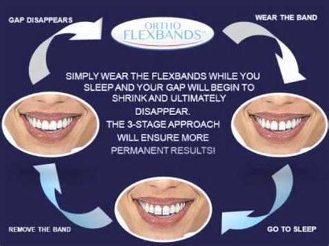 how to fix gap between fix teeth gap permanently without braces teeth gap