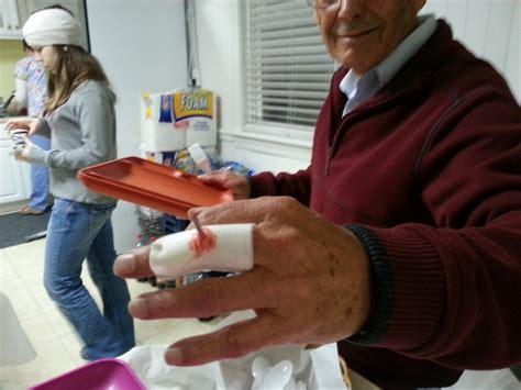 fake  injury party halloween holidays fake injury