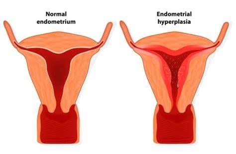 endometrial shedding without blood endometrial hyperplasia symptoms and treatment