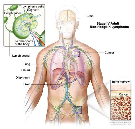 Adult Non Hodgkin Lymphoma Treatment Pdqpatient