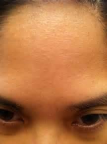 milia forehead - pictures, photos