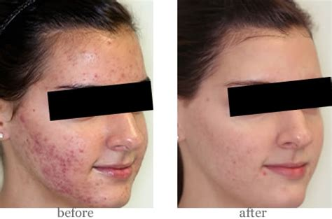 led light therapy before and after goldberg centre for cosmetic surgery blu u light