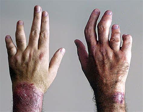 Beginnende artrose