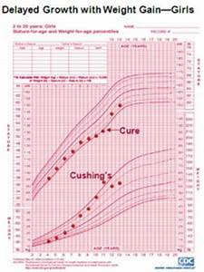 Early Identification Of Cushing 39 S Syndrome In Children